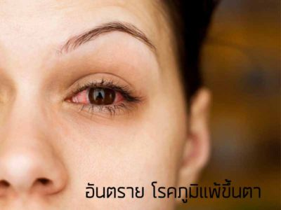 Eye allergy